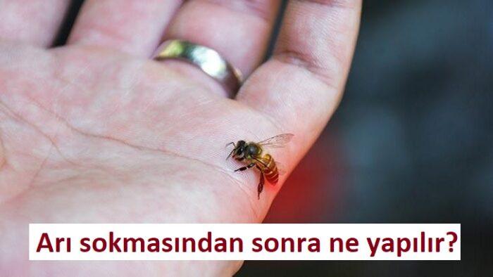 Arı sokmasından sonra ne yapılır