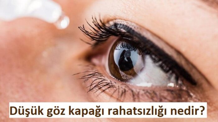 Düşük göz kapağı rahatsızlığı